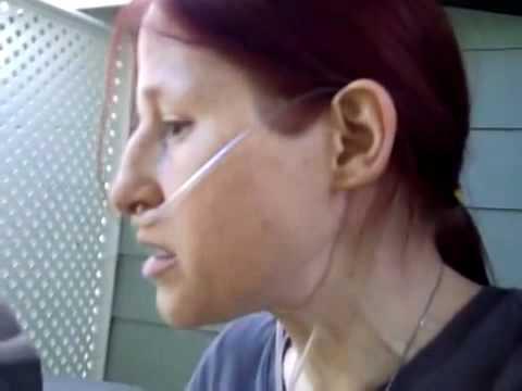 My Cardiac EP Hx Part II: Pacemaker Surgeries & More Info