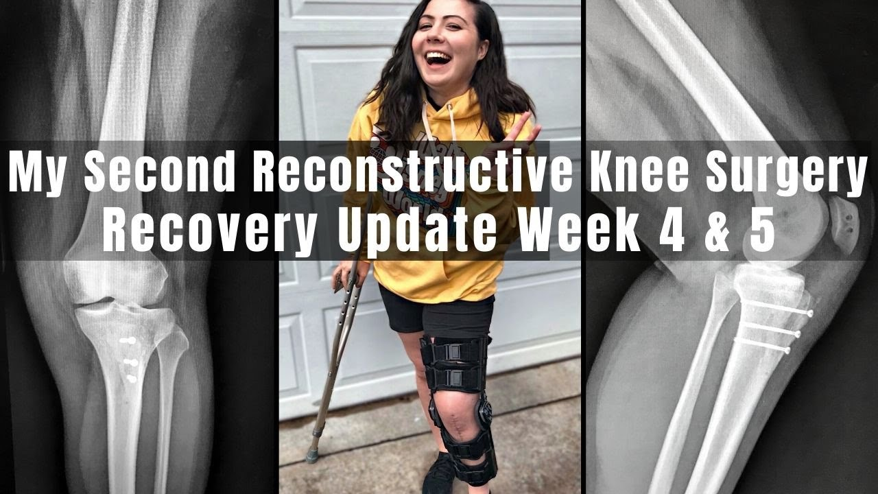 Download My Second Reconstructive Knee Surgery | Week 4 & 5 Recovery Update | TTO, MPFL & Lateral Lengthening