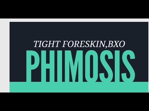 Tight Foreskin,Non retracting foreskin,BXO,Diabetic Phimosis-Circumcision Surgery