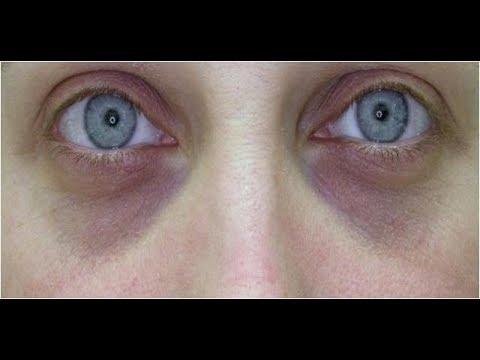 ★Убрать темные круги под глазами поможет пищевая сода. Нанеси кашицу на 10–15 минут