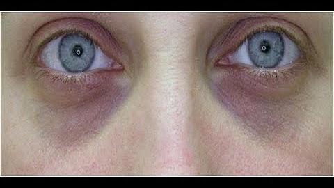sunken eyes meaning - 631×352