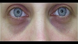 видео Как убрать темные круги под глазами