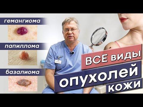 Онколог Рязань. Рак кожи. Как отличить все виды опухолей?