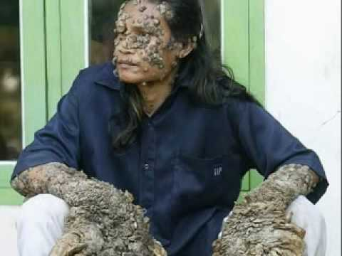 Dede Koswara - Tree Man of Java - YouTube