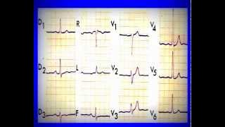 ECG normal et pathologique