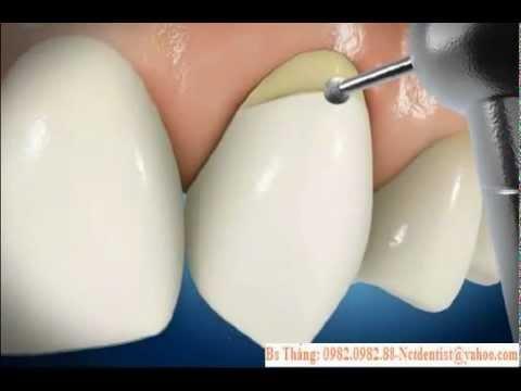 Mòn cổ răng - Hàn mòn cổ răng