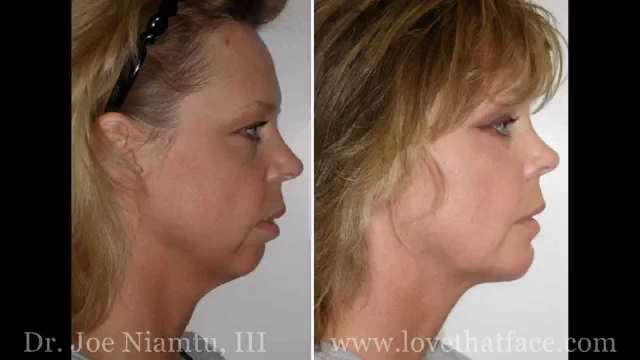Chin Surgery Richmond VA | Chin Plastic Surgery | Chin Implant