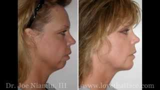 Genioplasty Versus Chin Implant
