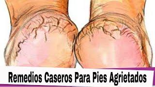Video Remedios Caseros Para Pies Agrietados: Remedios Caseros Para Pies Agrietados y Resecos download MP3, 3GP, MP4, WEBM, AVI, FLV Juli 2018