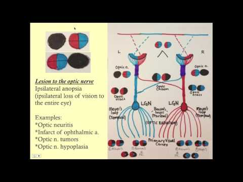 Neuro-opthalmology - CRASH! Medical Review Series