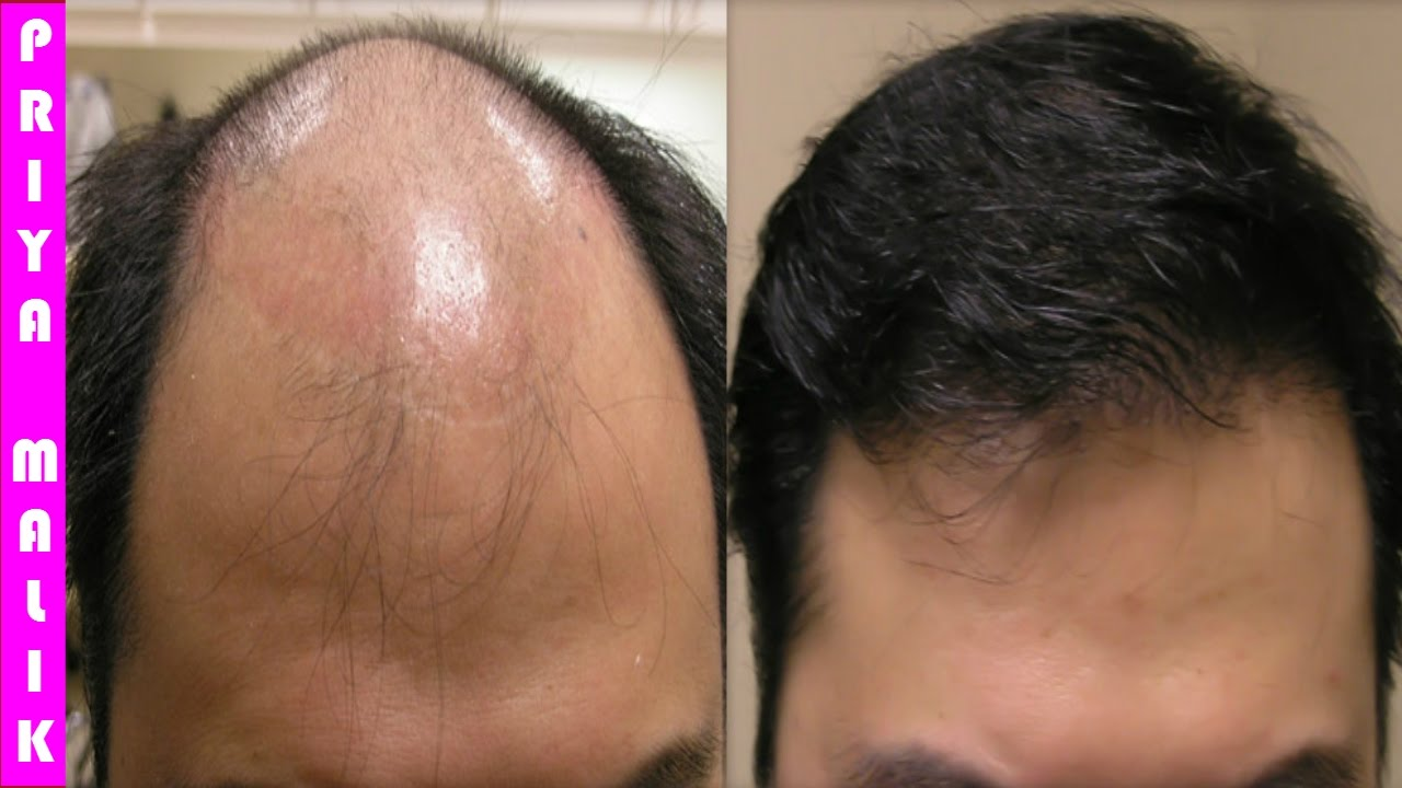 grow long hair, 100% natural hair loss treatment, cure baldness