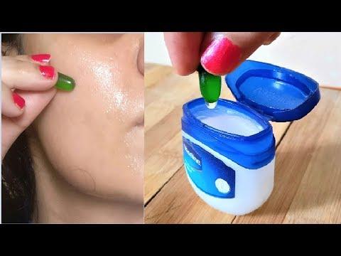 Use Vaseline & Vitamin E Oil On Face To Remove Dark Spots, Vaseline Beauty Hacks For Hair, Skin