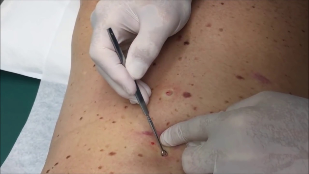 Image Result For Blackhead Extractor Tool