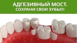 видео Протезирование без обточки соседних зубов