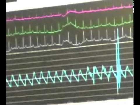 Watch an Angiogram Procedure