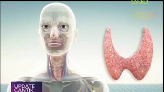 Kanker tiroid adalah pertumbuhan sel abnormal yang terjadi di dalam kelenjar tiroid. Tiroid adalah k.