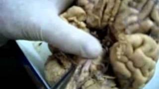 Brain Anatomy Using Real Human Brain.wmv