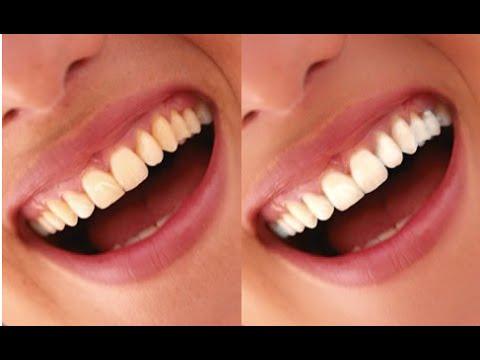 Como Clarear Os Dentes Em 2 Minutos Com Fermento Em Po Youtube