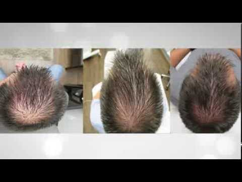 Hair Replacement Therapy | MD Wellness & Aesthetics in Birmingham, AL