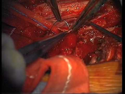 Dr. Ali Bydon Removes An Intradural Spinal Cord Tumor