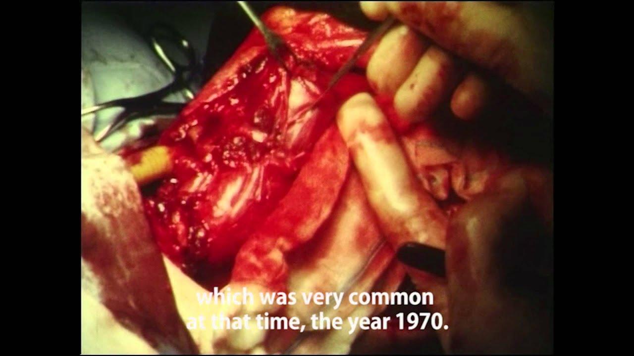 1000 Cigarettes - Laryngectomy (1000 Zigaretten - Laryngektomie ...