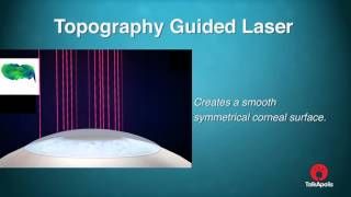 Health and Wellness: Topography Guided Laser - Keratoconus