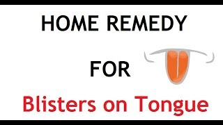 5 Home Remedy for Blisters on Tongue