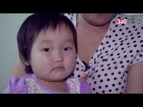 Голова ребенка: норма и патология