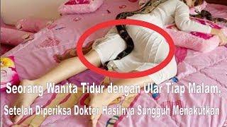 Download Video Seorang Wanita Tidur dengan Ular Tiap Malam, Setelah Diperiksa Dokter Hasilnya Sungguh Menakutkan MP3 3GP MP4