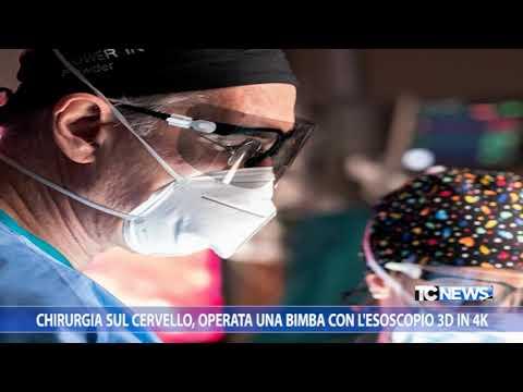 Chirurgia Sul Cervello, Operata Una Bimba Con L'esoscopio 3D In 4K
