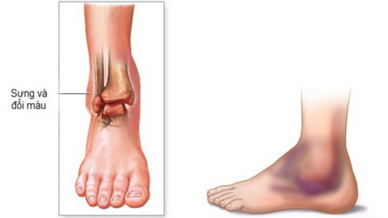 Bệnh đau viêm khớp cổ chân nguyên nhân cách điều trị