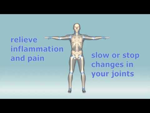 What are the treatments for rheumatoid arthritis?