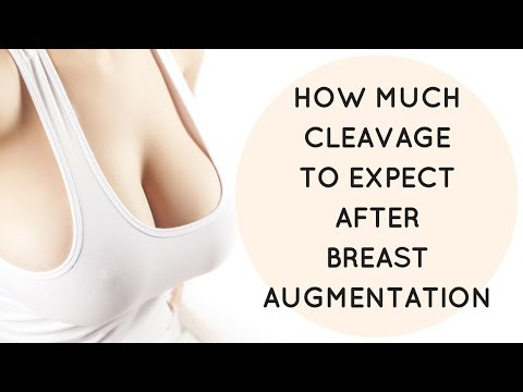 How Much Cleavage To Expect After Augmentation