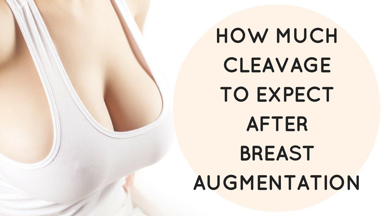 long breast island enhancement