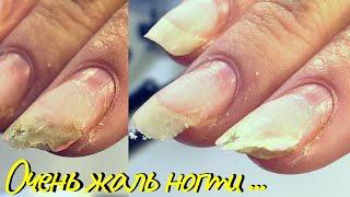 Маникюр из студии Полное восстановление ногтеи