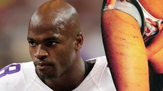 Adrian Peterson Child Abuse & Woman Rapist Charged
