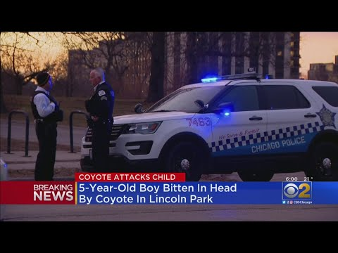 image for Boy Bitten In Head By Coyote in Lincoln Park