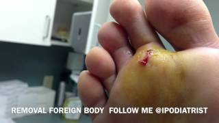 Repeat youtube video Removal Of Foreign Body