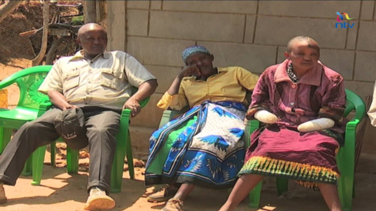 Man cuts off wife's hands for being childless