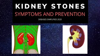 KIDNEY STONES: Symptoms and Prevention