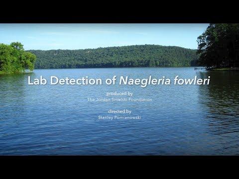 LAB Detection of Naegleria fowleri