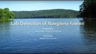 LAB Detection of Naegleria fowleri