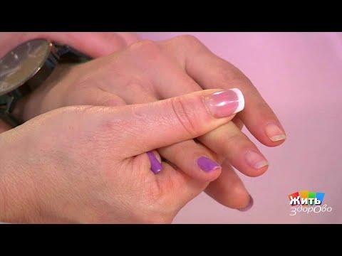 Симптом наперстка на ногтях