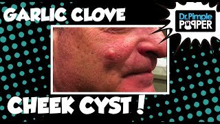 The Garlic Clove Epidermoid Cyst