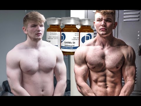 SARMS: I WENT BLIND | Teenagers experience w/ Sarms