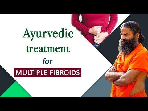 Ayurvedic Treatment for Multiple Fibroids   Swami Ramdev