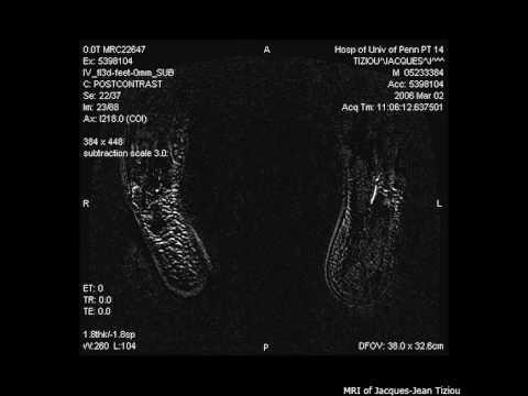 MRI of my legs