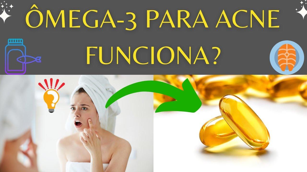 best omega 3 for acne