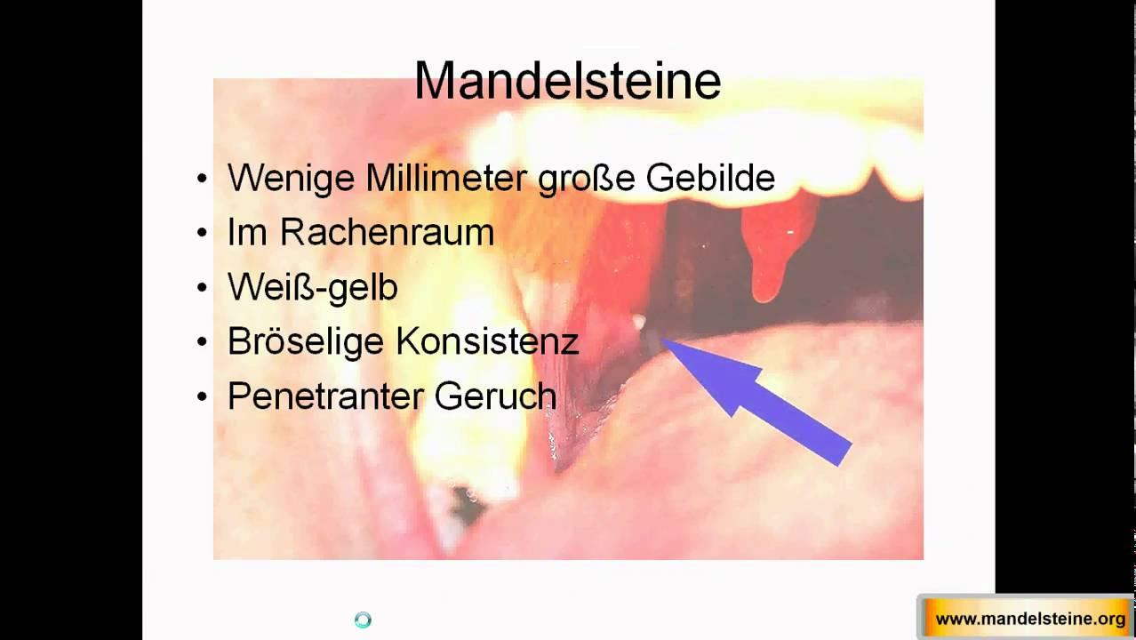 Mandelsteine dauerhaft entfernen - Nie wieder Mundgeruch - http ...