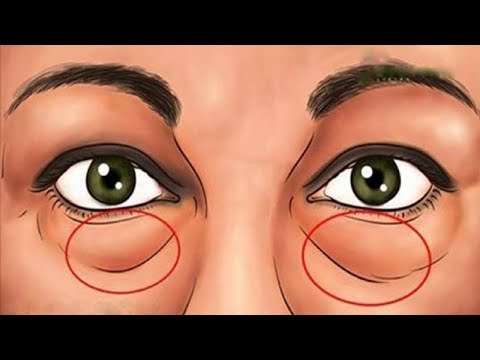 Best Natural Treatments To Remove Dark Circles And Bags Under The Eyes.